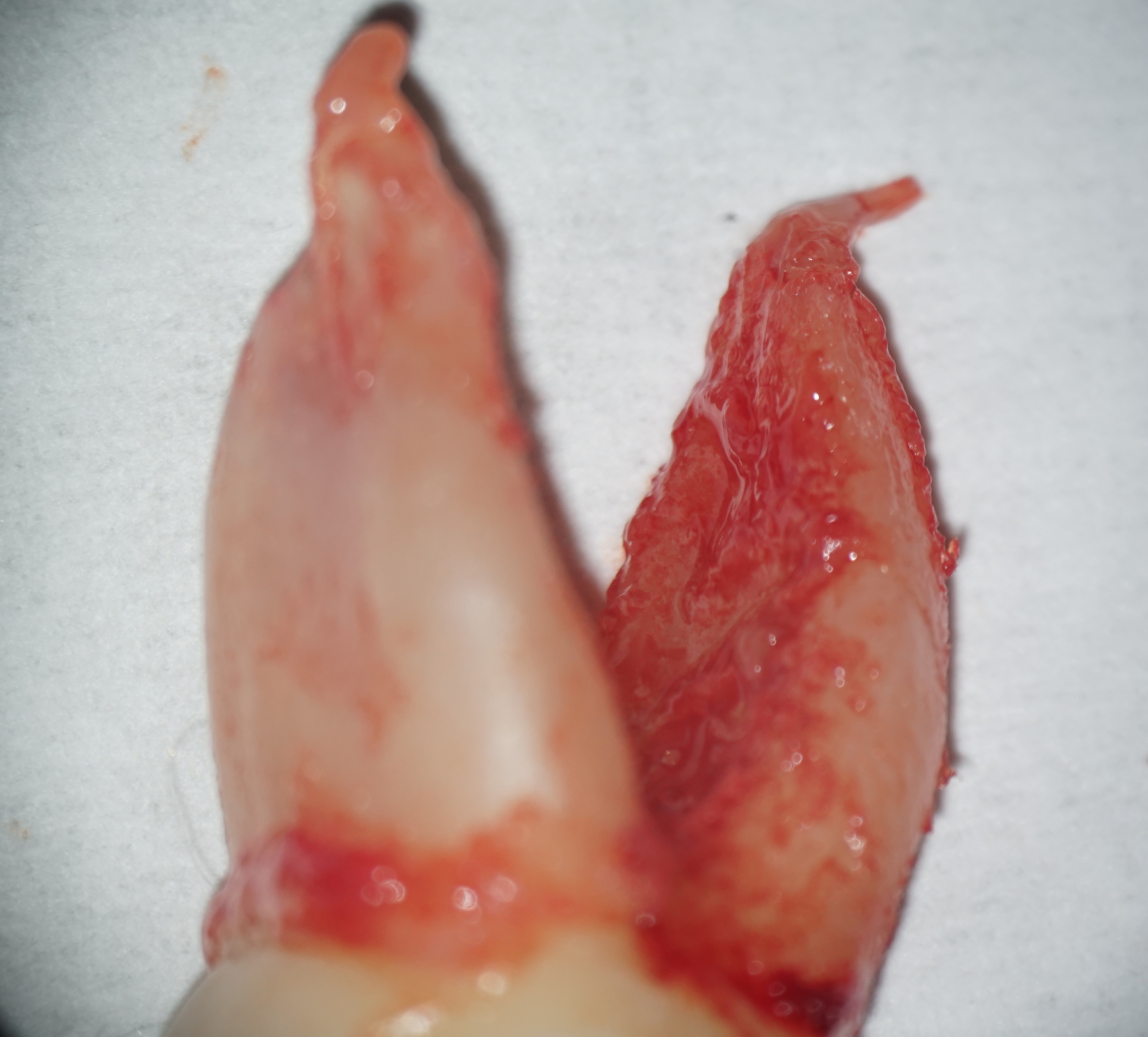 Dental work in progress on tooth