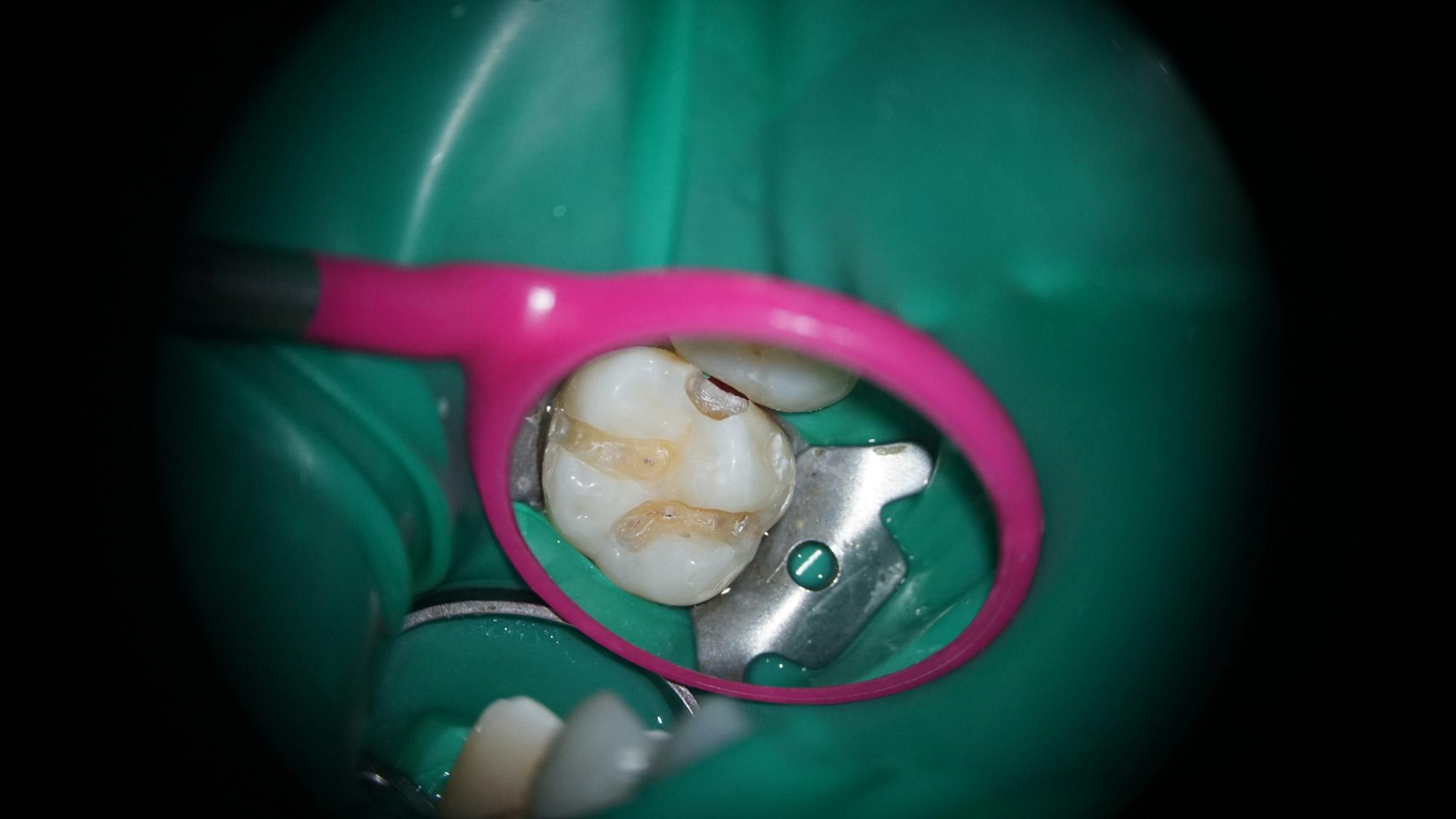 Dental work through microscope