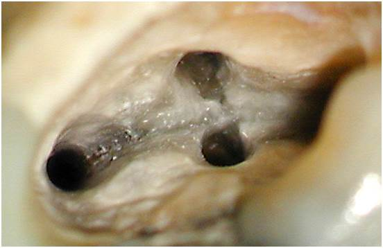 Dental work in progress on tooth as seen through microscope