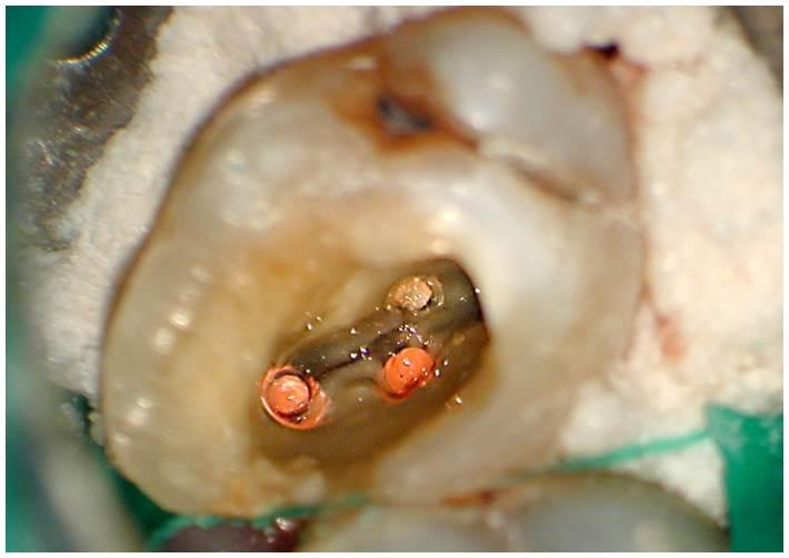 Dental work in progress on tooth as seen through microscope